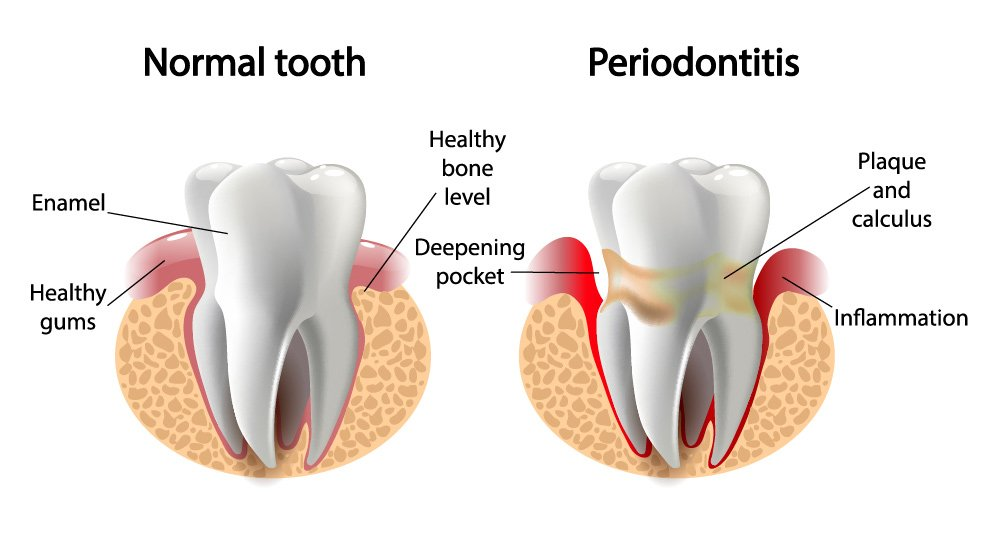 Periodontitis treatment at Larkham House