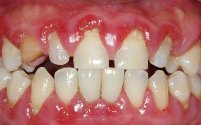 What is gum disease and how do I prevent it?