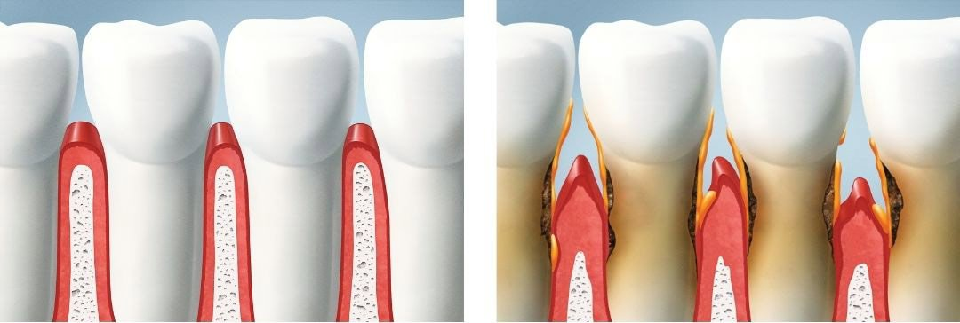 Example of mouth with and without gum disease